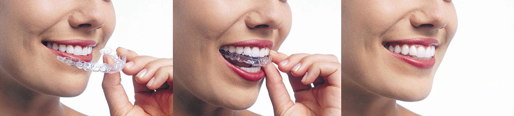 Cosmetic Dentist in Mississauga
